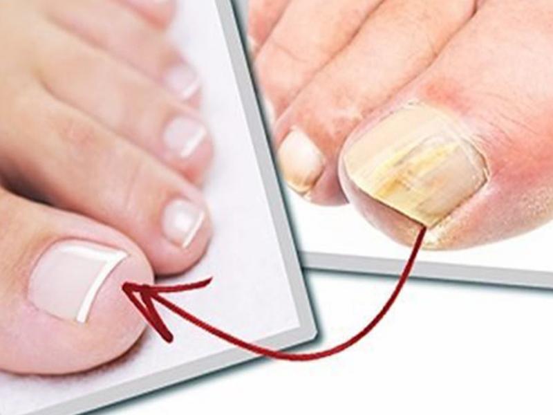 Программа таблетка про грибок ногтей