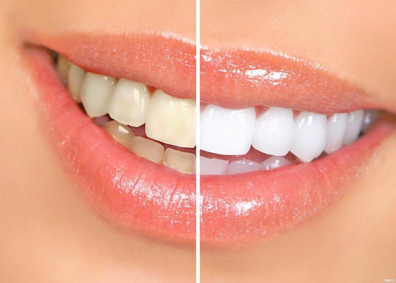 Как отбеливать зубы перекисью водорода