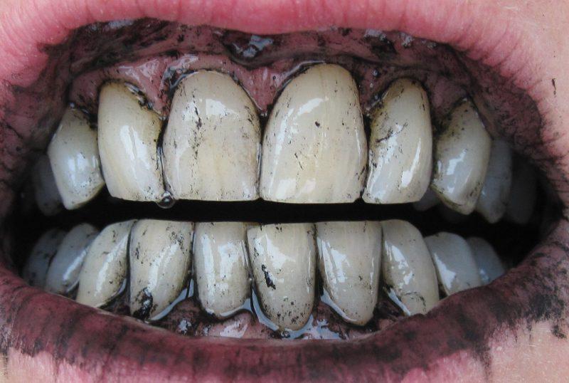 Остатки угля на зубах и деснах после отбеливания