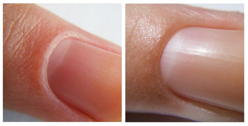 Желтизна ногтей