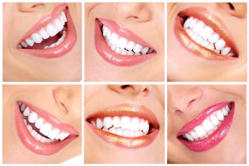 Белоснежная улыбка после отбеливания зубов активированным углем