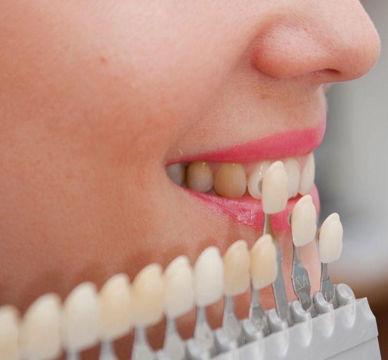 отбеливание металлокерамических зубов