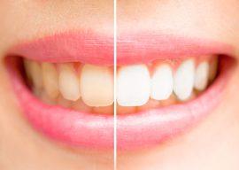 Можно ли отбеливать металлокерамические зубы? Способы и рекомендации